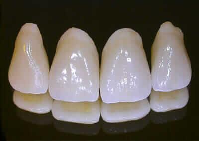 best dental crown