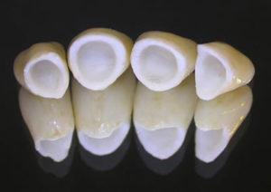 dental crown surgery
