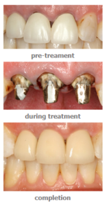 tooth crown procedure