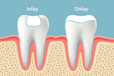 dental inlay and onlay