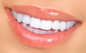 dental veneers near me