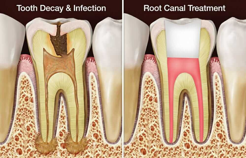 tooth root canal