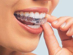 teeth whitening dentist penrith
