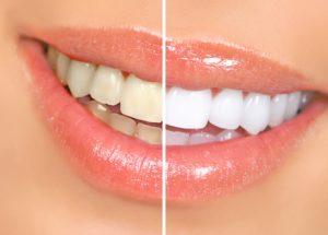 teeth whitening penrith