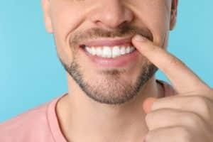 Dental Bridge Penrith